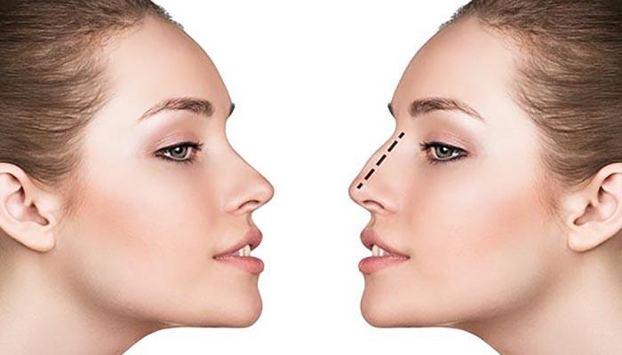 نحوه انجام عمل بسته بینی گوشتی